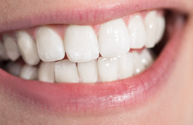 teeth-whitening Phoenix