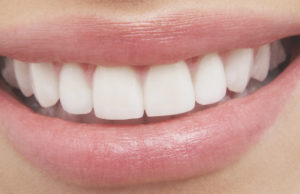 veneers-arizona-dentist